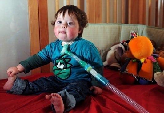 Boy with tracheostomy tube