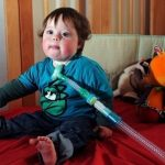 Boy with tracheostomy tube